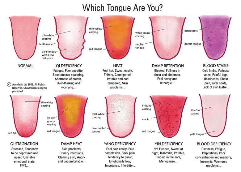 Different tongue profiles and what they mean. (chart)