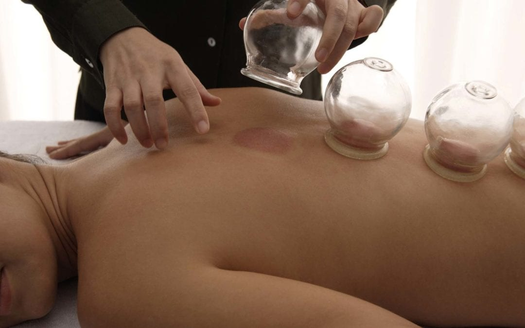 Cupping & Herbal Medicine in Washington DC