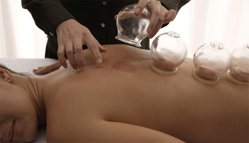Transformational Acupuncture - cupping