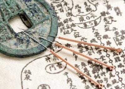 How To Get the Most out of Your Acupuncture Treatment